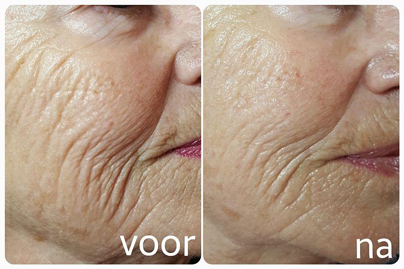 Resultaat Elastine Infusie Therapie bij Florin Beauty Salon in Ede