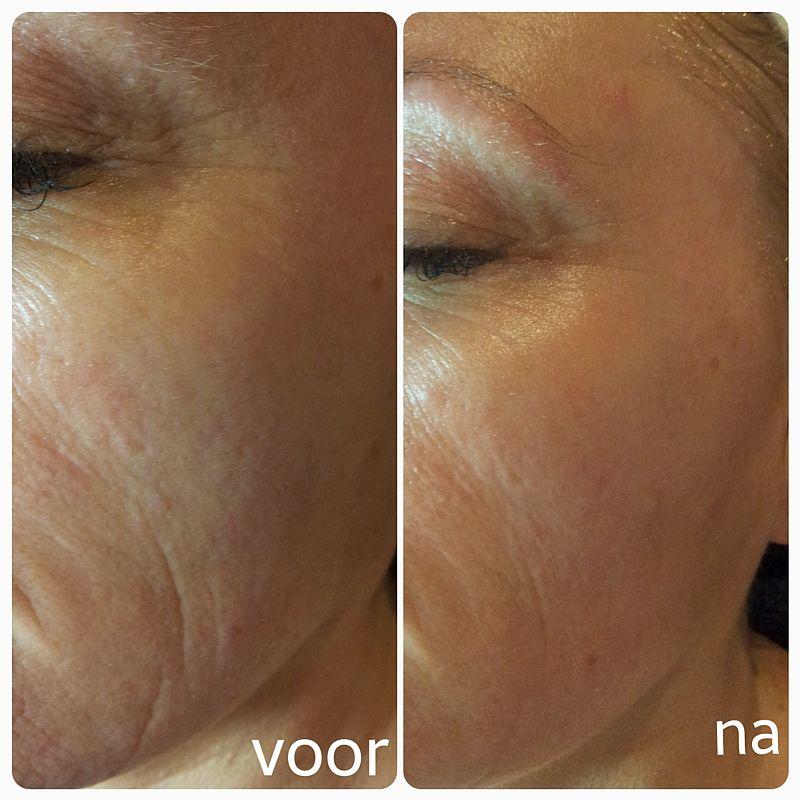 Resultaat huidverstrakking met de BTS-2 bij Florin Beauty Salon in Ede