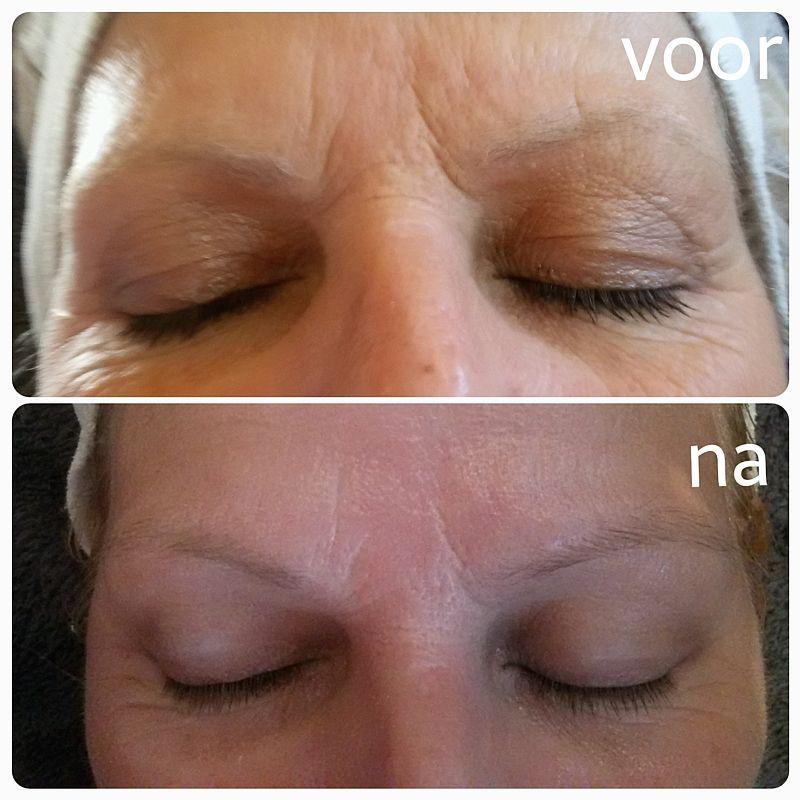 Resultaat Hydrafacial – dermabrasie behandeling mond bij Florin Beauty Salon in Ede