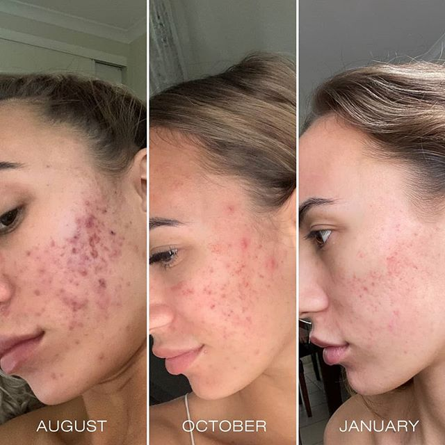 Resultaat van een behandeling met chemische peelingen bij Beauty Salon Florin in Ede
