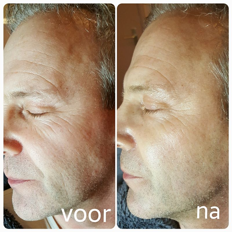 Resultaat cryolifting man Florin Beauty Salon Ede 800x800