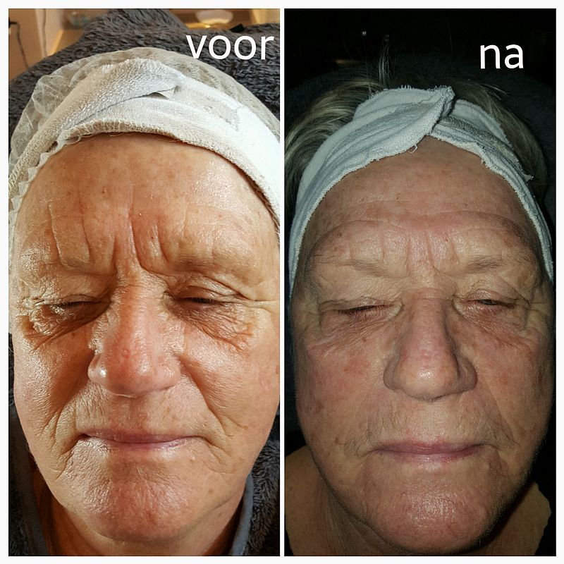 Resultaat cryolifting vrouw Florin Beauty Salon Ede 800x800