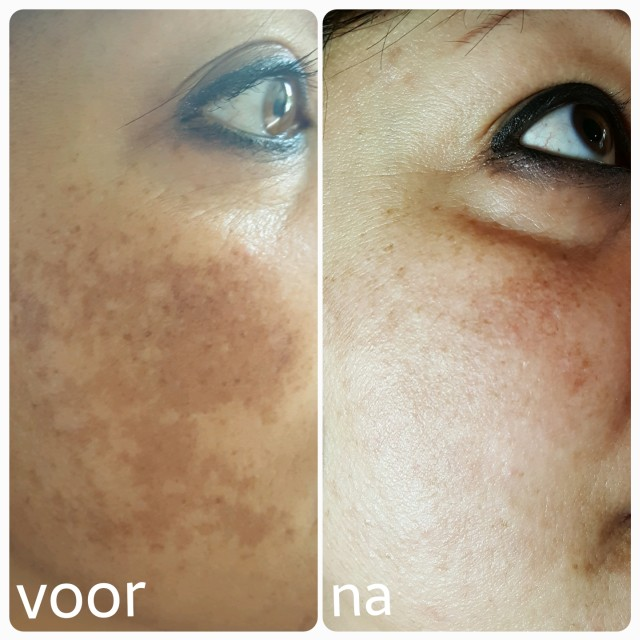 Resultaat van chemisch peeling bij pigmentatie door Beauty Salon Florin in Ede