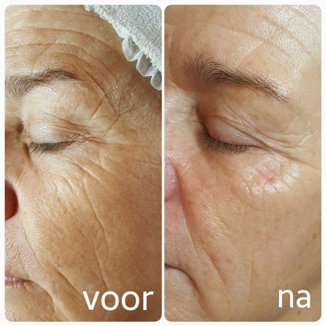 Resultaat van chemisch peeling bij rimpels door Beauty Salon Florin in Ede